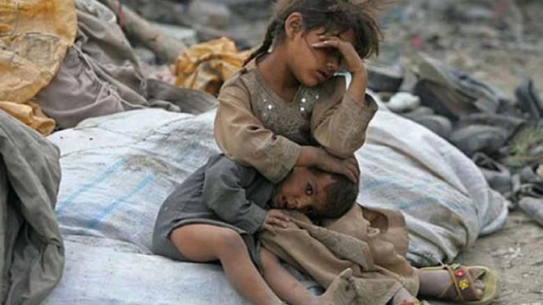Yemen'de Çocuklar Ölüyor